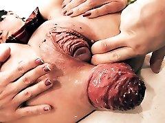 Wildly Huge Prolapse! Cervix Exposure. Eggplant Penetratio