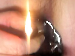 young boy extreme speculum play