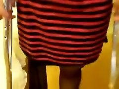 RAK Amputee Whith Empty Nylon Leg