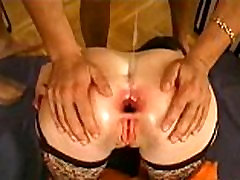 anal gaping 500