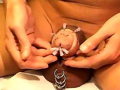 Needles in pecker