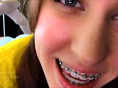 Braces at angel cummings compilation.com