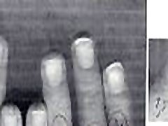 0 &ndash Olivier Ongles1234 hand fetish pictures compilation, hands and nails evolution, thumb sucking and nails biting pictures from 1999 to 2002