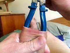 Large blue pliers in foreskin - 2 of 2