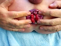 Self anal fisting my dirty prolapse